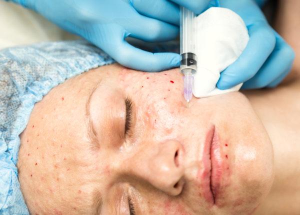 Redermalizacja – nowy zabieg anty-aging