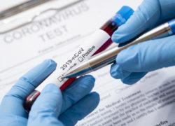 """COVID-19 uznany za pandemię"""