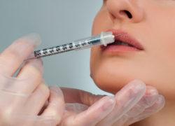 Dlaczego kwas hialuronowy wchłonął się tak szybko?