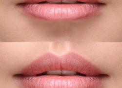 Chirurgiczne metody powiększania ust