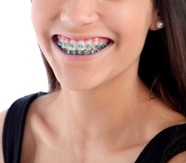 Medycyna estetyczna i ortodoncja