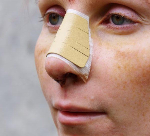 Korekta czubka nosa