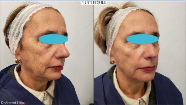 Nucleofill – zabieg dla wymagających