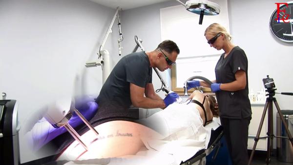 Laserowe usuwanie tatuażu i makijażu permanentnego