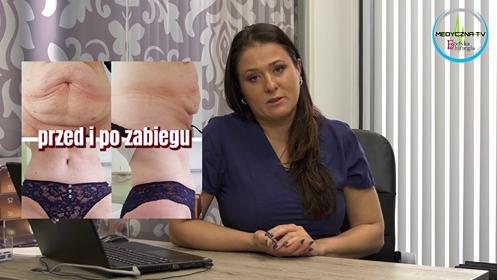 dr Anna Aseńko o zabiegu plastyki powłok brzusznych