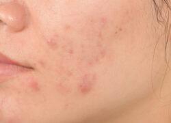 Czy maska szkodzi na skórę? Czym jest Mascne?