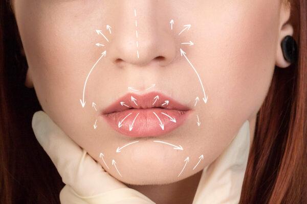 Lip threads – nici powiększające usta
